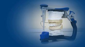 Аномалии размеров зубов