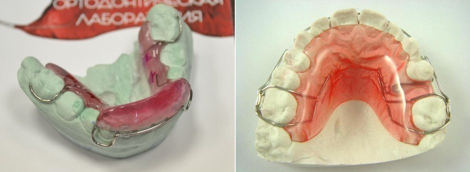Аппарат Брюкля на зубах