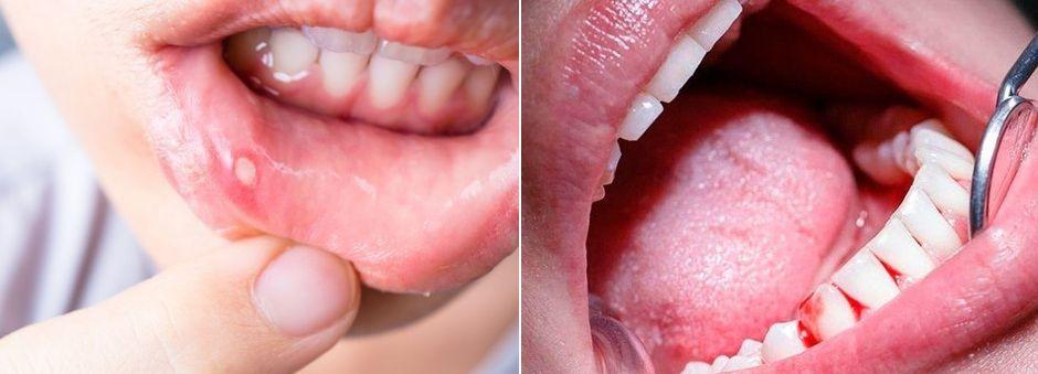 Воспалительные процессы во рту