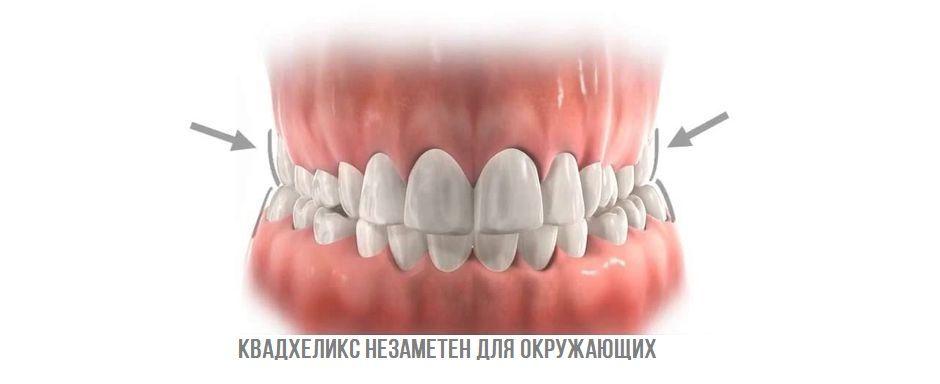 Квадхеликс на зубах