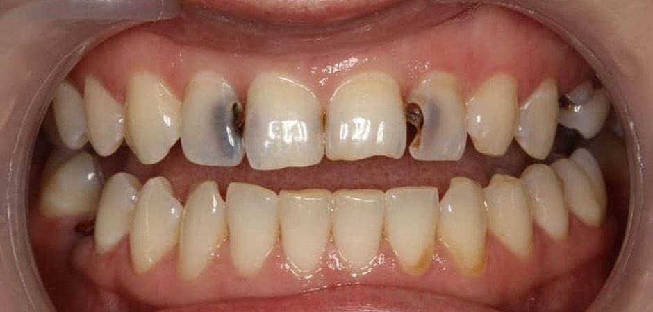 Серьезные повреждения зубов
