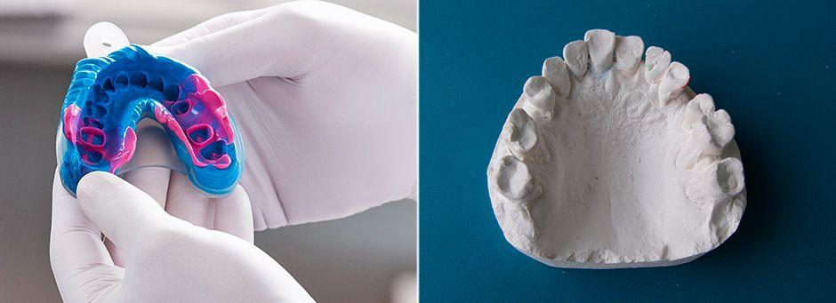 Снятие слепков и изготовление гипсовой модели челюсти
