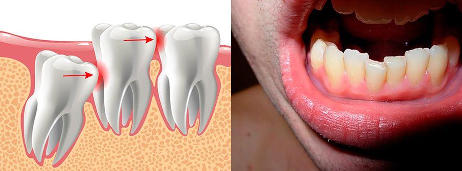 Влияние дистопированного зуба на зубной ряд