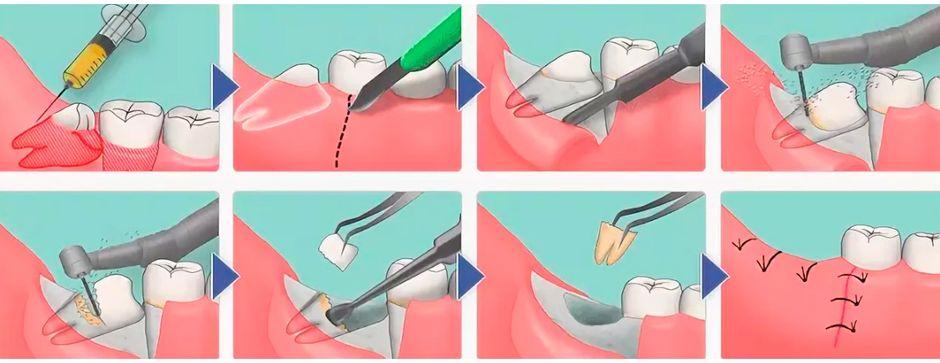 Удаление дистопированного 8 зуба-моляра