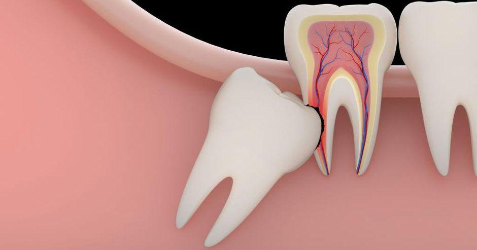 Дистопированные зубы