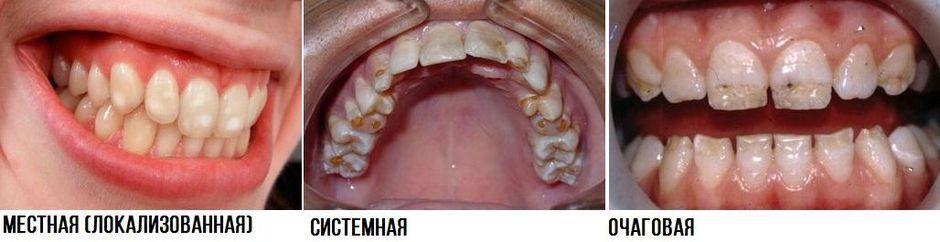 Виды гипоплазии эмали