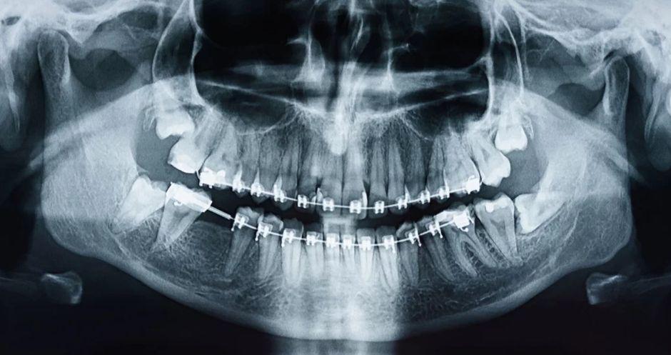 Рентген челюстей с брекетами