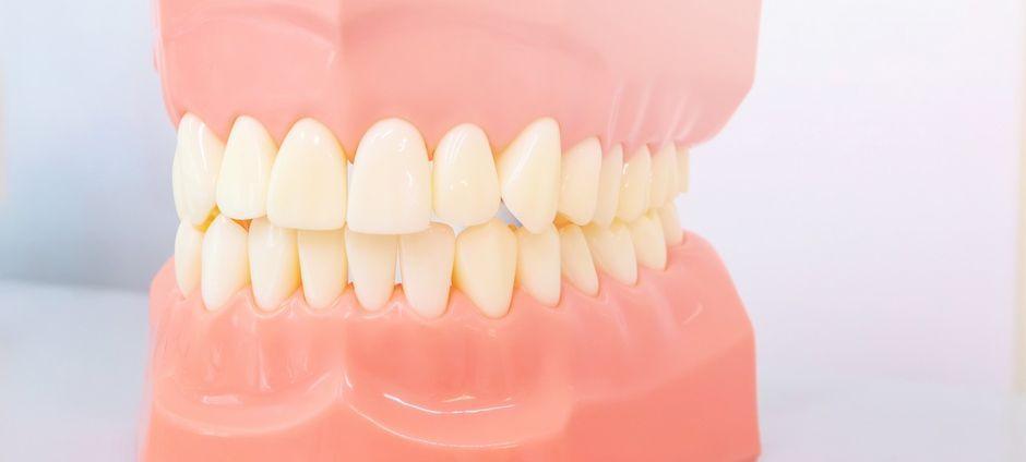 Лечение зубочелюстных аномалий