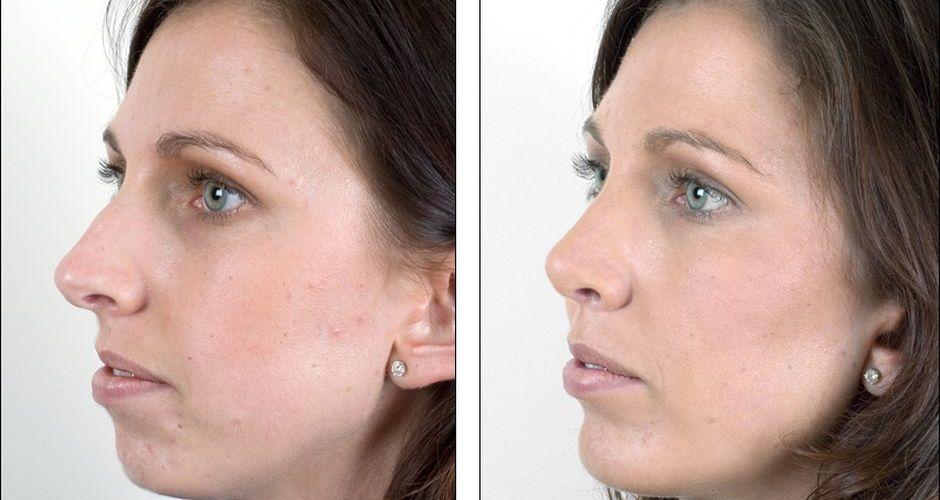 Как меняется лицо после ношения брекетов