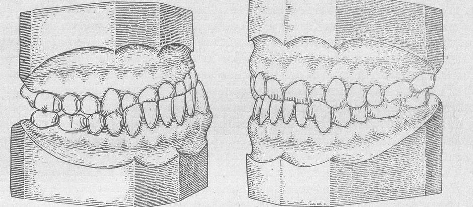 Смыкание зубов при истинной и ложной прогении