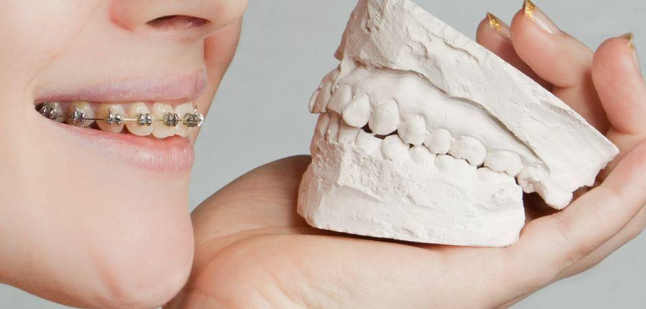 Гипсовый слепок зубов
