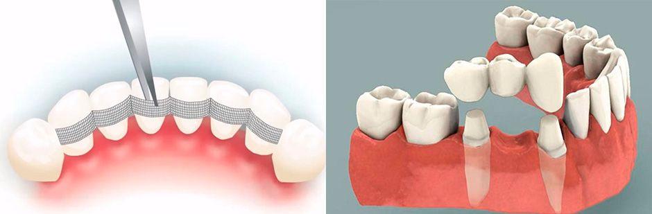 Фиксация зубного ряда и протезирование