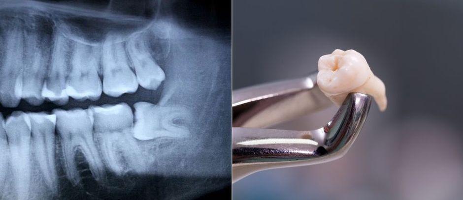 Удаление зуба после снимка