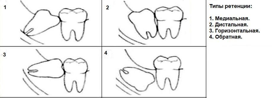 Типы ретенции