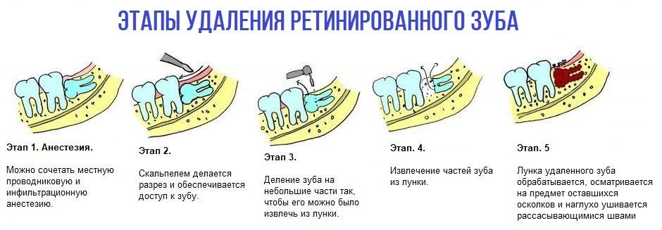 Этапы удаления ретинированного зуба