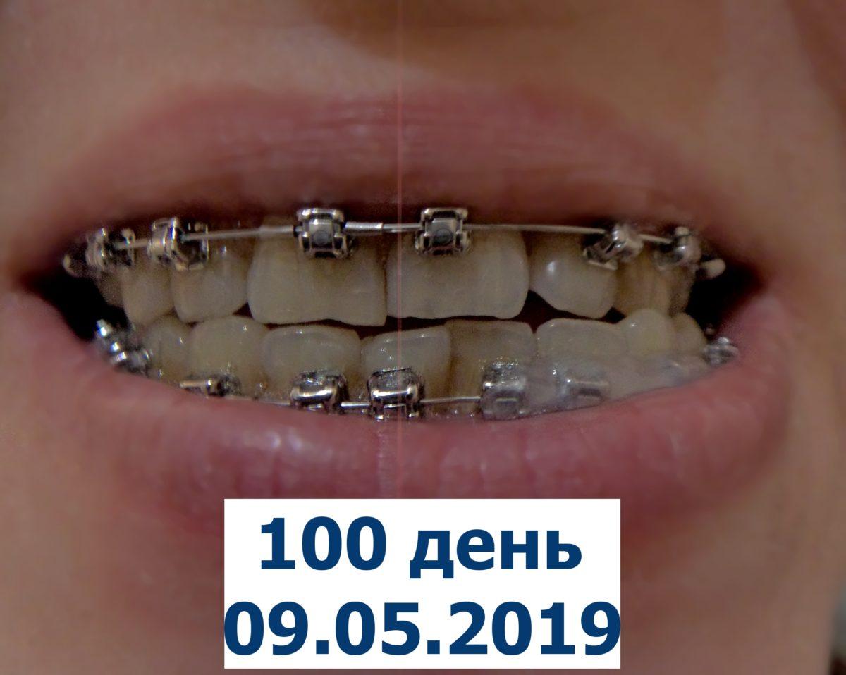 100 дней брекетам