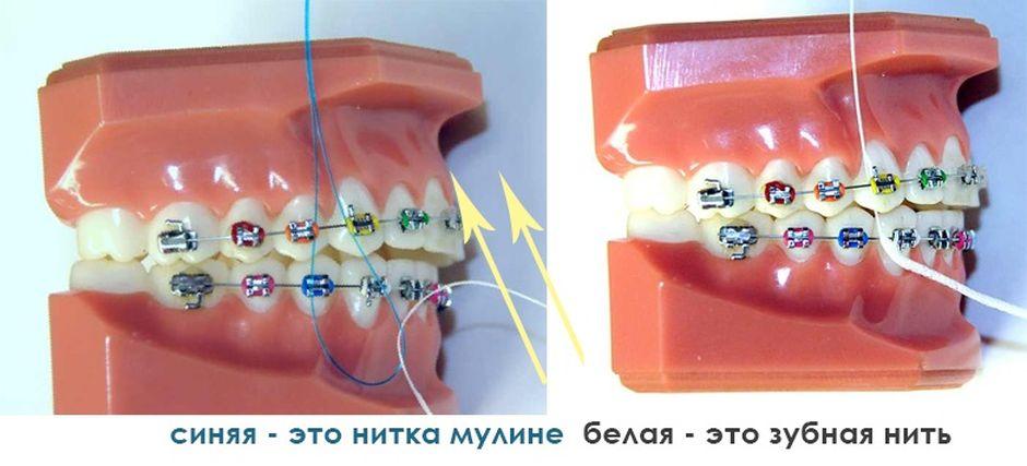 Зубная нить для чистки брекетов